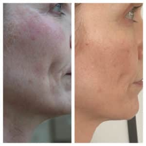 Ultherapy 3 Months Post Treatment