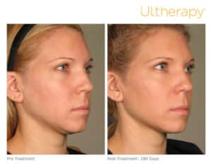 Ultherapy Before & After Face
