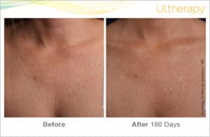 Ultherapy Before & After Chest