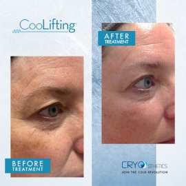 CoolLift Before & After